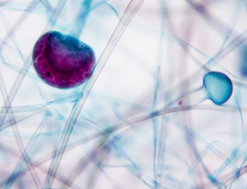 Micotoxinas en los alimentos: esto es lo que debes saber