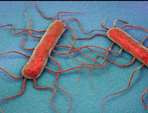 Control de Listeria